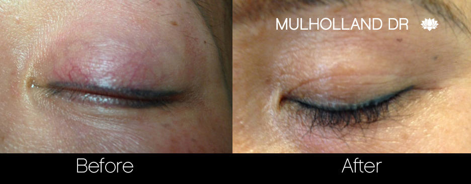 Eyelash FUE - Before and After Gallery – Photo 1