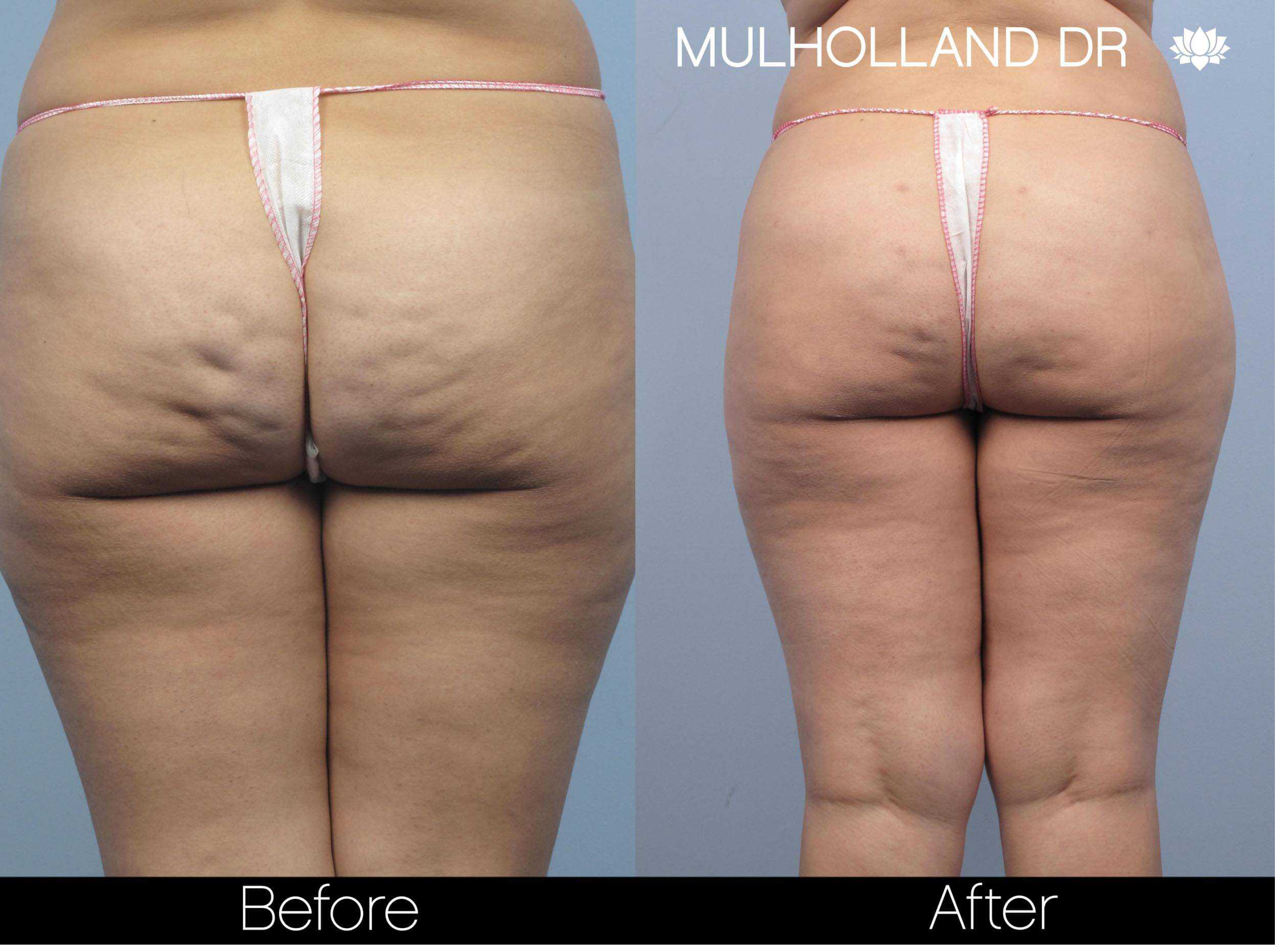 Cellulite Reduction Before and After Gallery – Photo 49