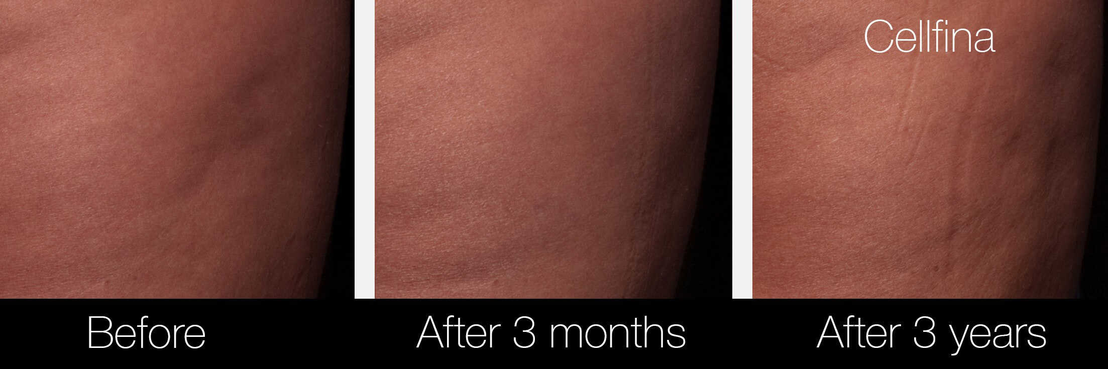 Cellfina Cellulite Treatment - Before and After Gallery – Photo 10
