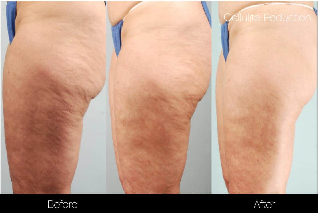 Cellulite Reduction Before and After Gallery – Photo 39