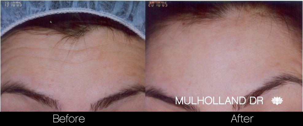 Botox Before and After Gallery - Photo 15