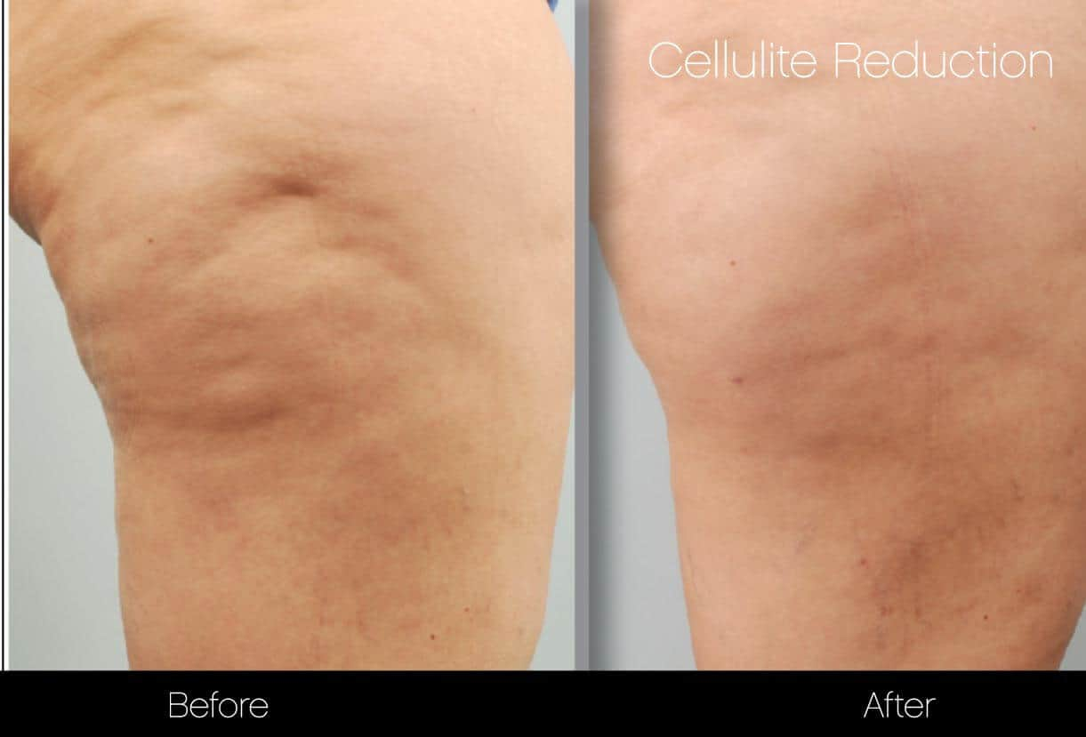 Cellulite Reduction Before and After Gallery – Photo 38