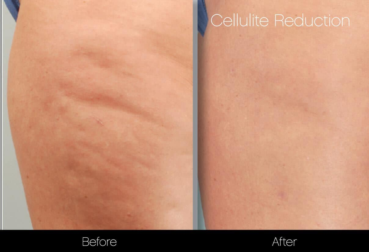 Cellulite Reduction Before and After Gallery – Photo 37