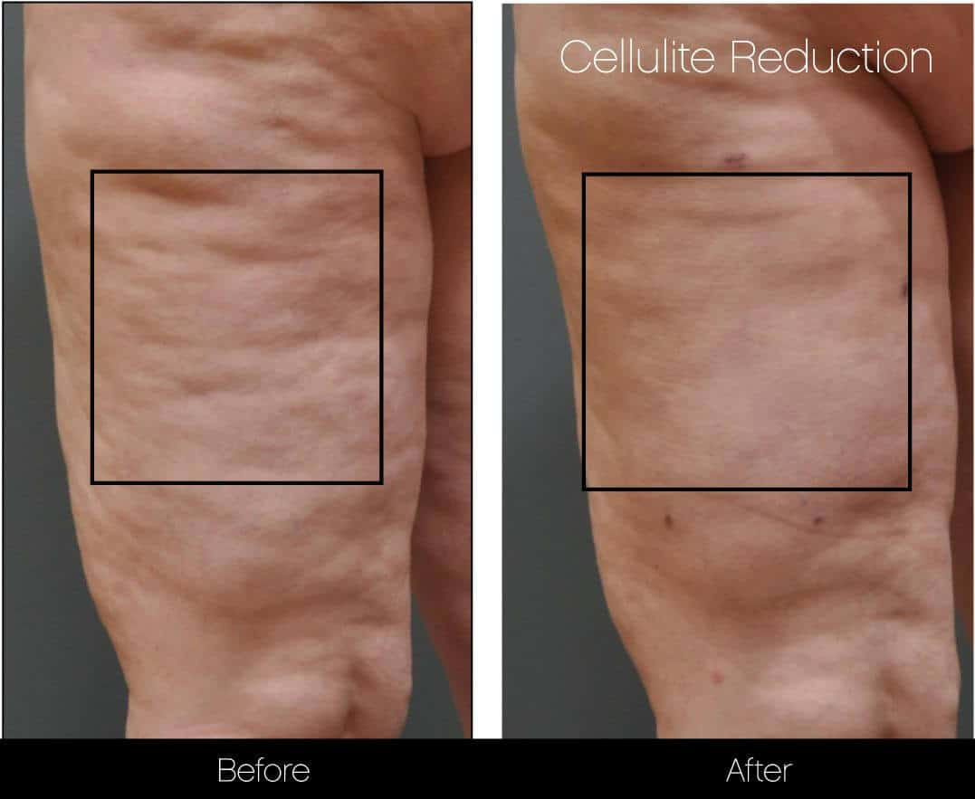Cellulite Reduction Before and After Gallery – Photo 21