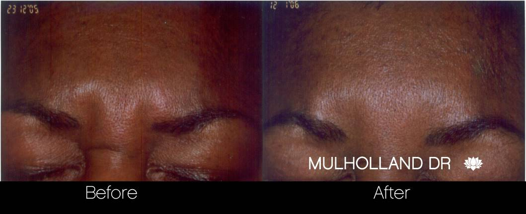 Botox Before and After Gallery - Photo 20