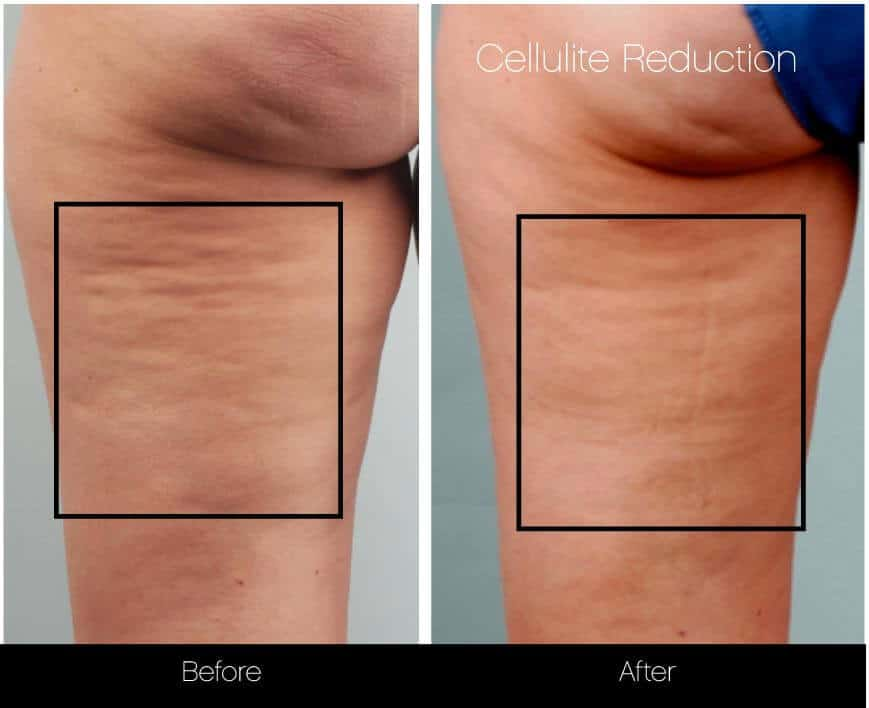 Cellulite Reduction Before and After Gallery – Photo 20