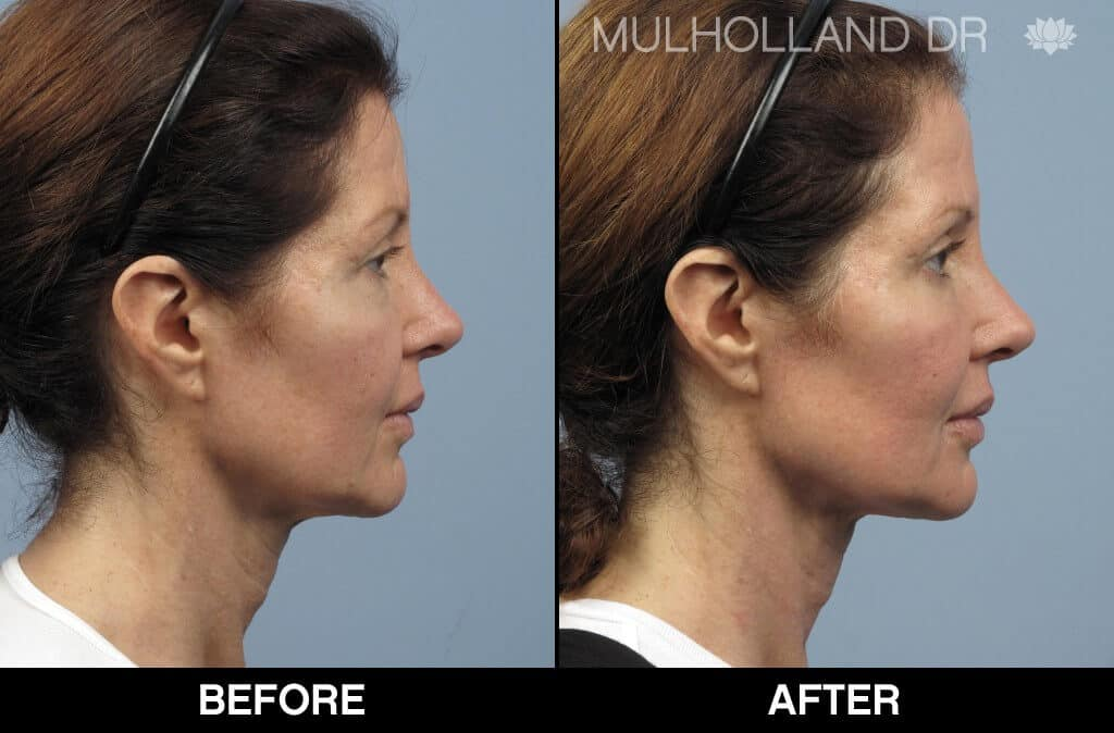 Dermal Fillers Before and After Gallery – Photo 129