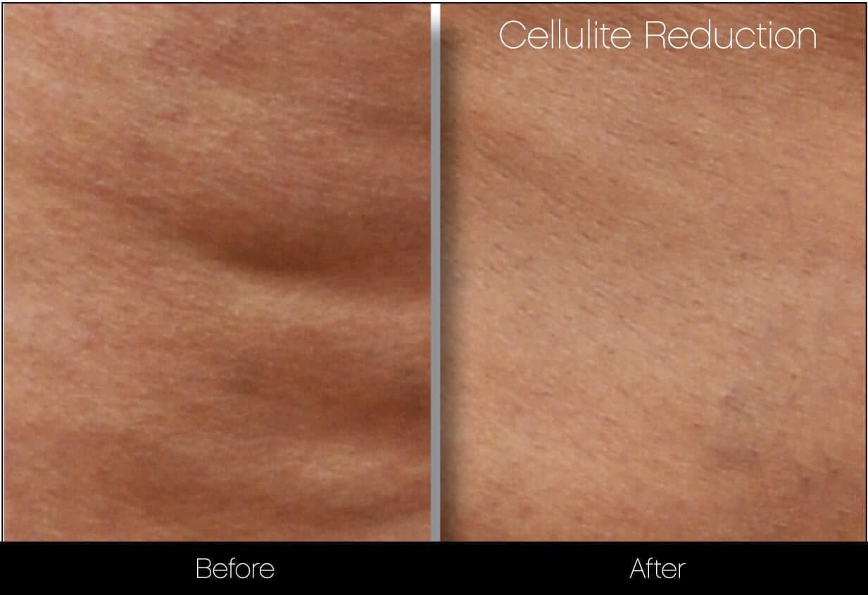 Cellulite Reduction Before and After Gallery – Photo 19