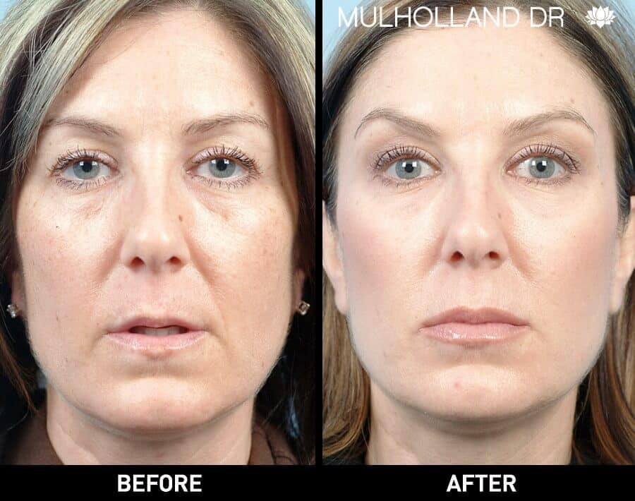 Dermal Fillers Before and After Gallery – Photo 128