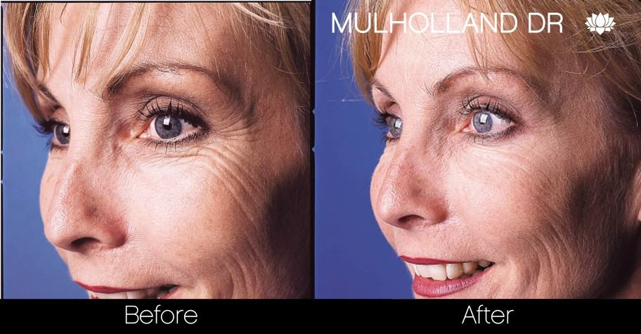 Botox Before and After Gallery - Photo 16