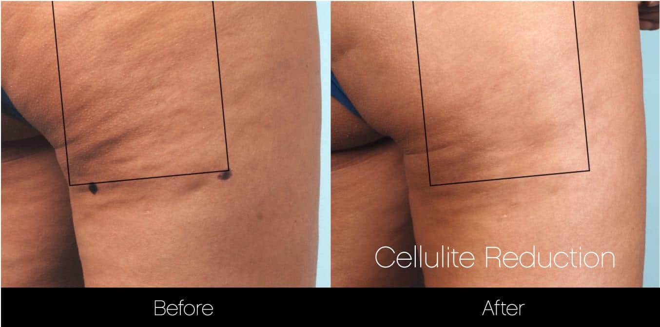 Cellulite Reduction Before and After Gallery – Photo 16