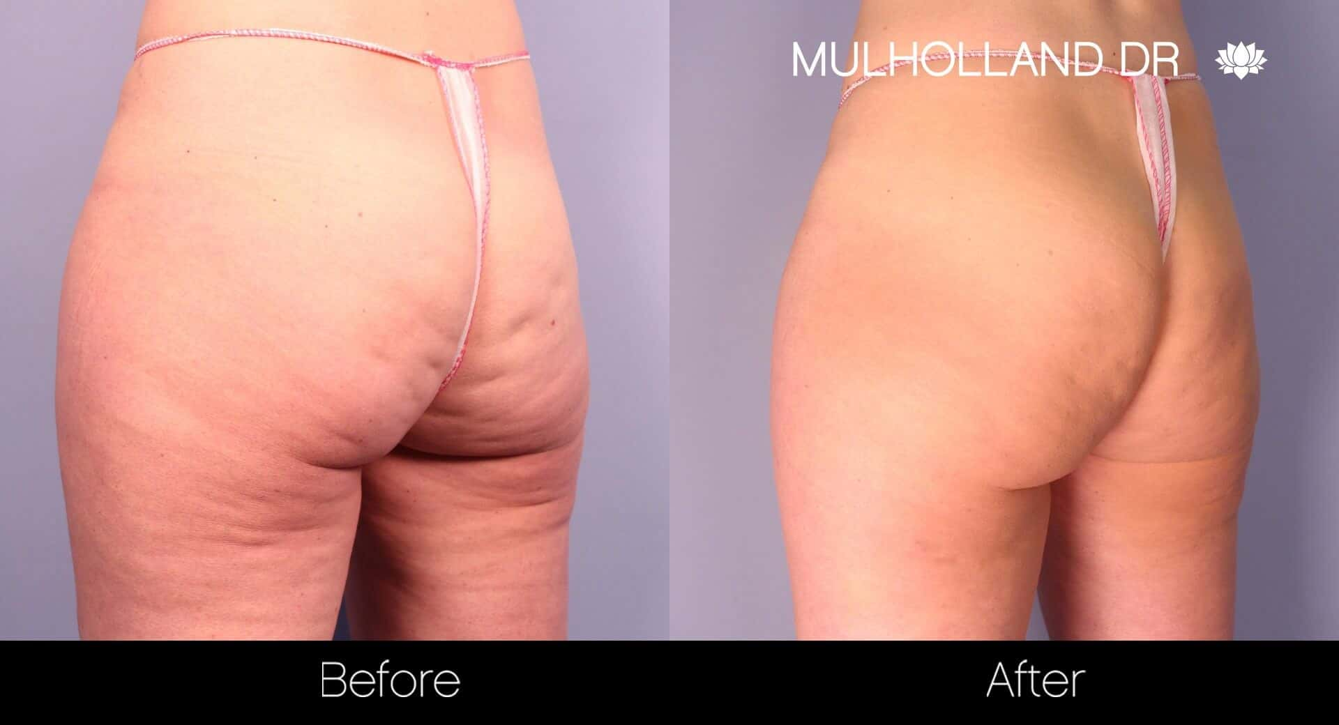 Cellfina Cellulite Treatment - Before and After Gallery – Photo 2