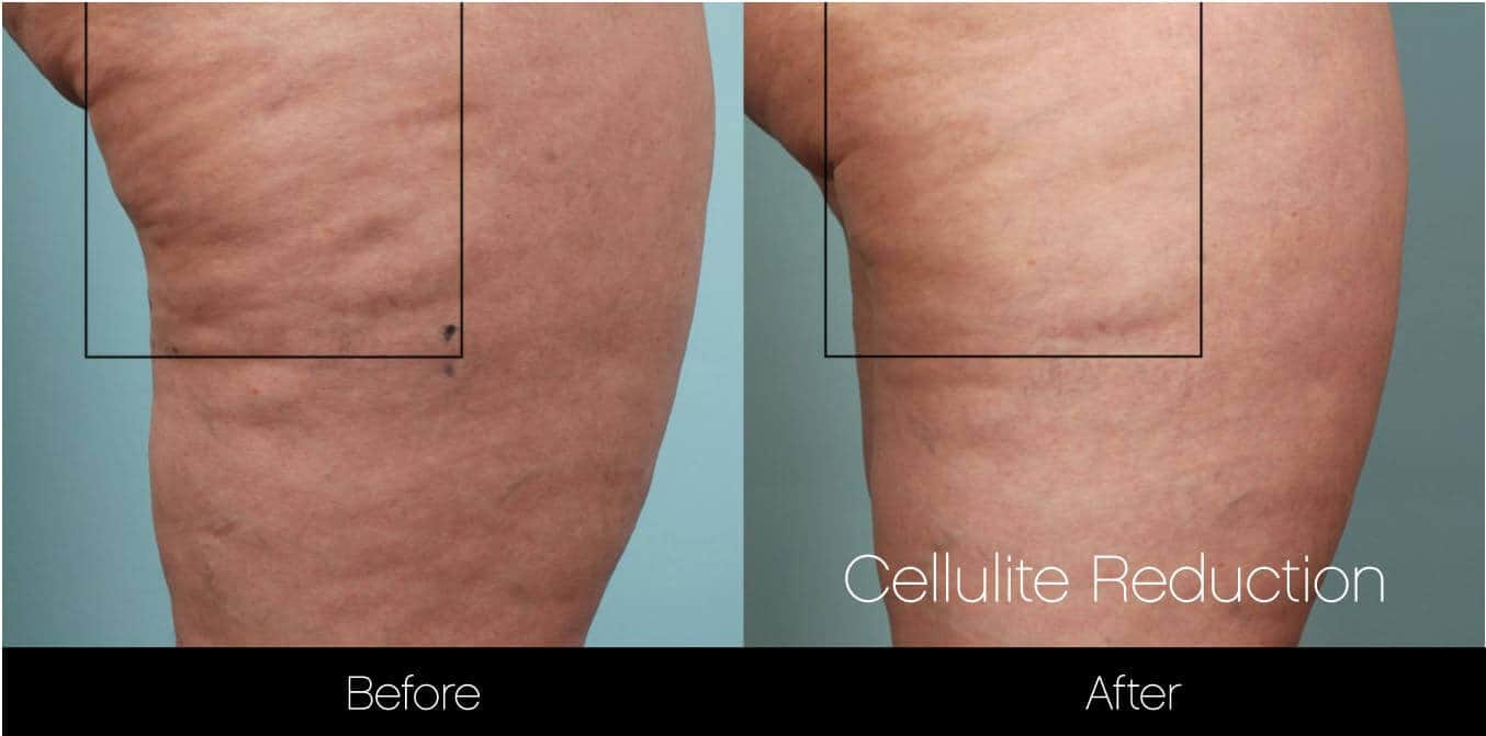 Cellulite Reduction Before and After Gallery – Photo 14