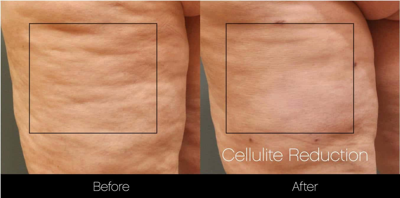 Cellulite Reduction Before and After Gallery – Photo 11