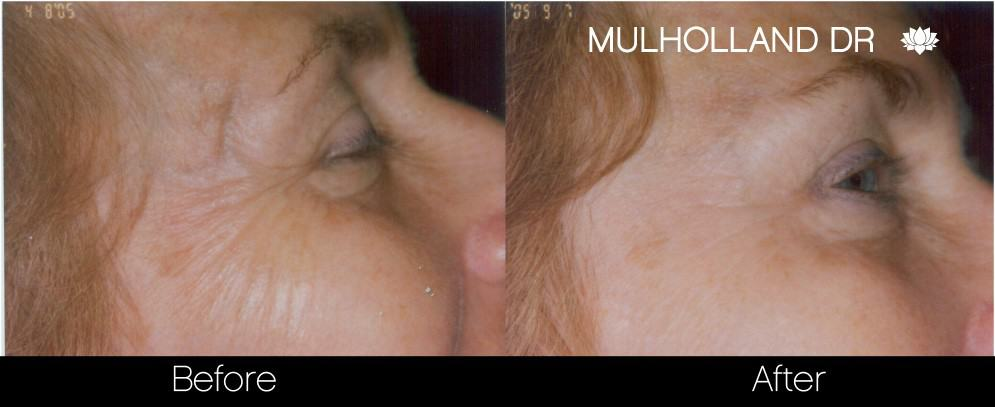 Botox Before and After Gallery - Photo 26