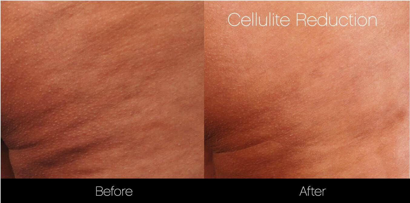 Cellulite Reduction Before and After Gallery – Photo 10