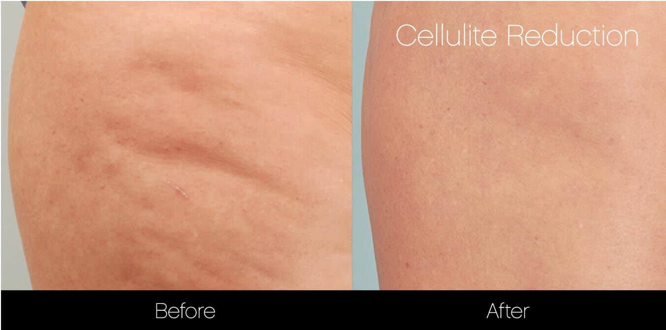 Cellulite Reduction Before and After Gallery – Photo 8