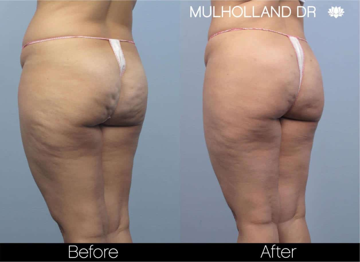 Cellulite Reduction Before and After Gallery – Photo 47