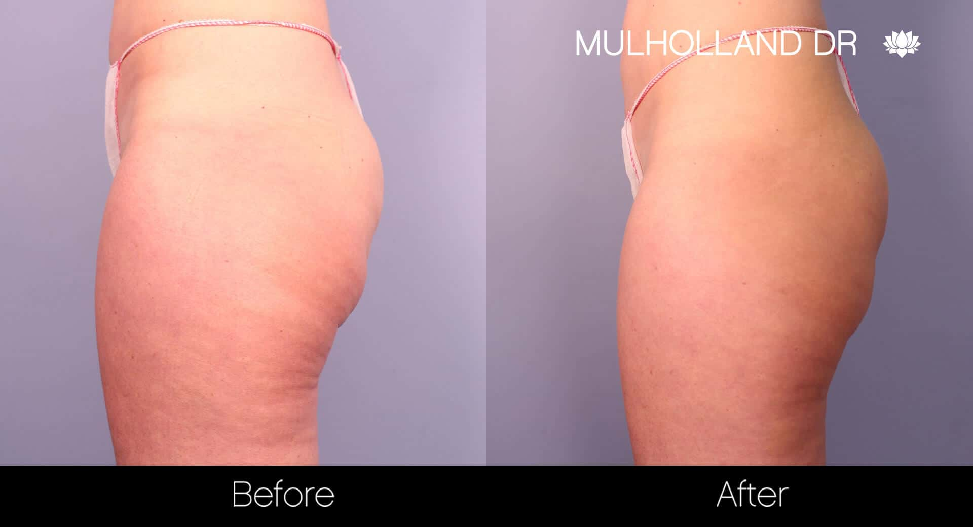 Cellfina Cellulite Treatment - Before and After Gallery – Photo 3