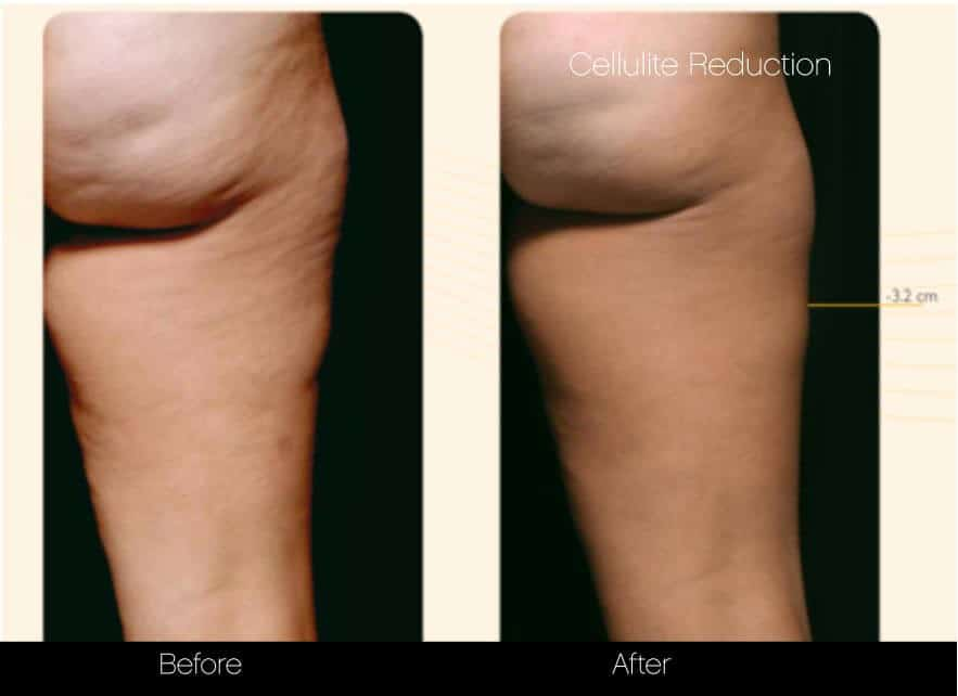 Cellulite Reduction Before and After Gallery – Photo 5