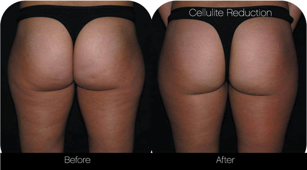 Cellulite Reduction Before and After Gallery – Photo 6