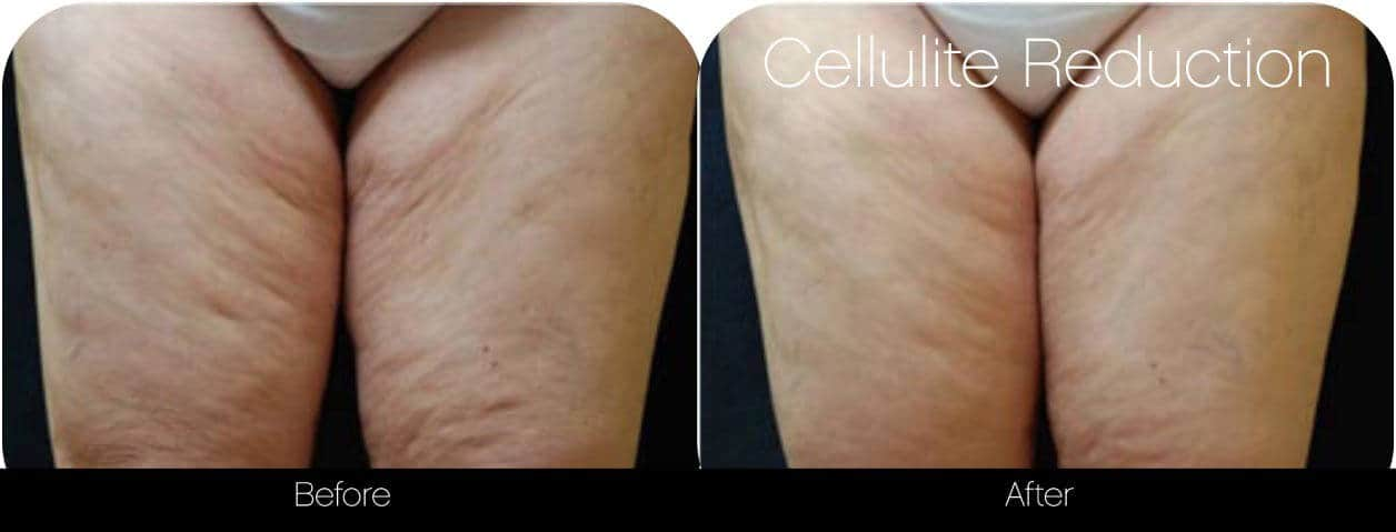 Cellulite Reduction Before and After Gallery – Photo 4