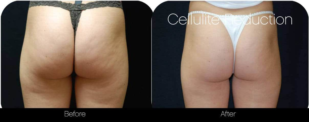 Cellulite Reduction Before and After Gallery – Photo 3