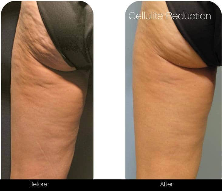 Cellulite Reduction Before and After Gallery – Photo 1