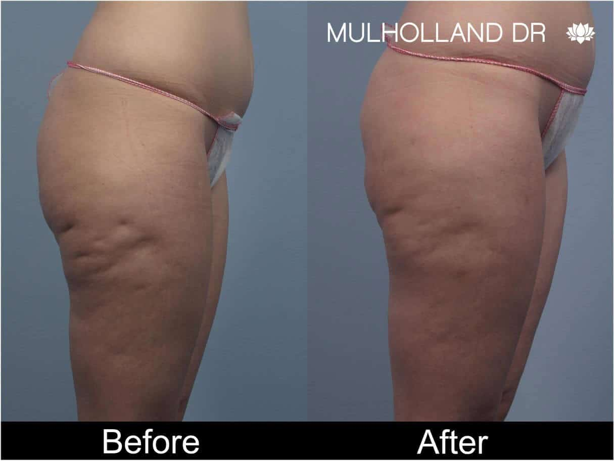 Cellulite Reduction Before and After Gallery – Photo 46
