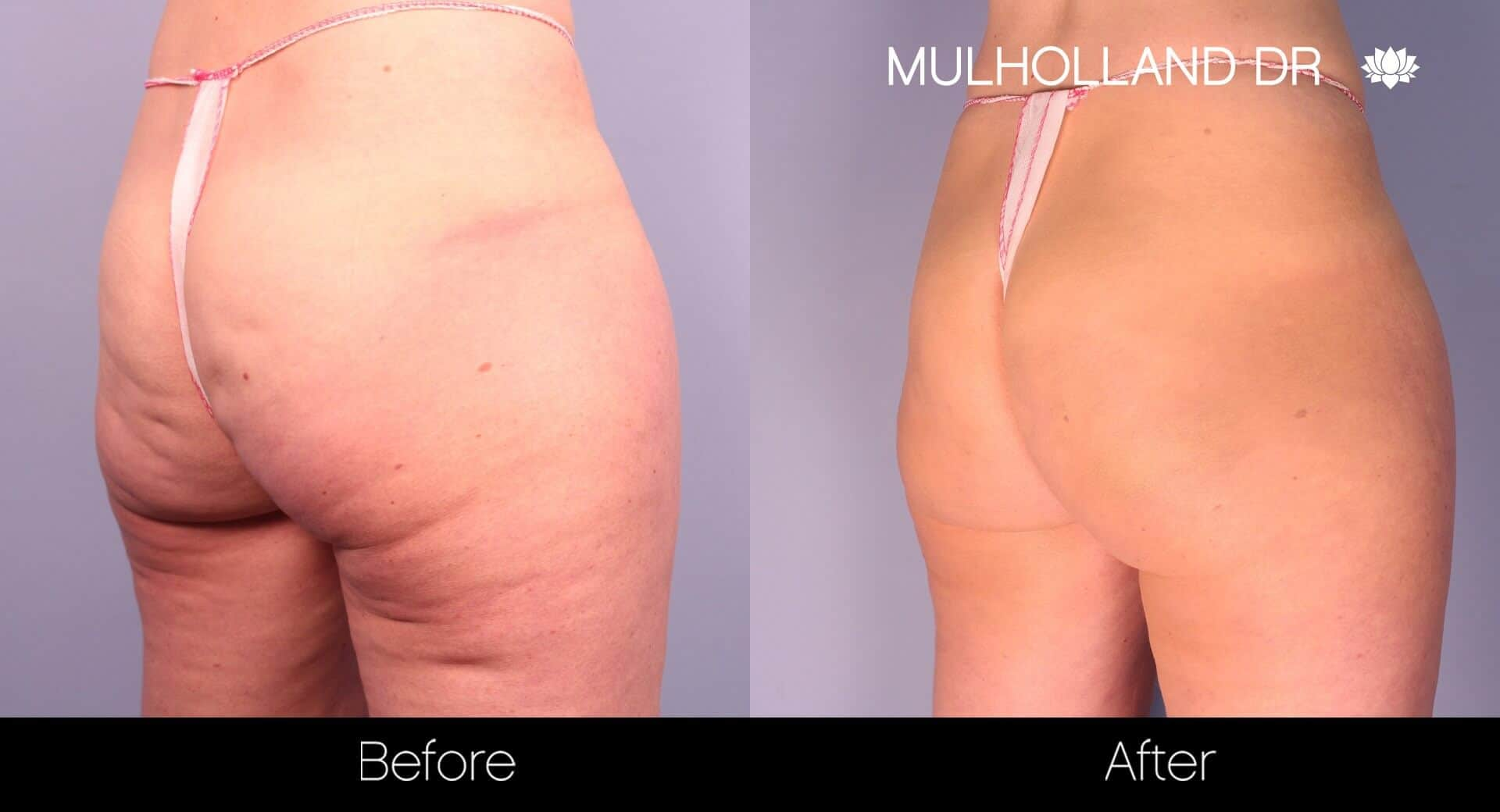 Cellfina Cellulite Treatment - Before and After Gallery – Photo 4