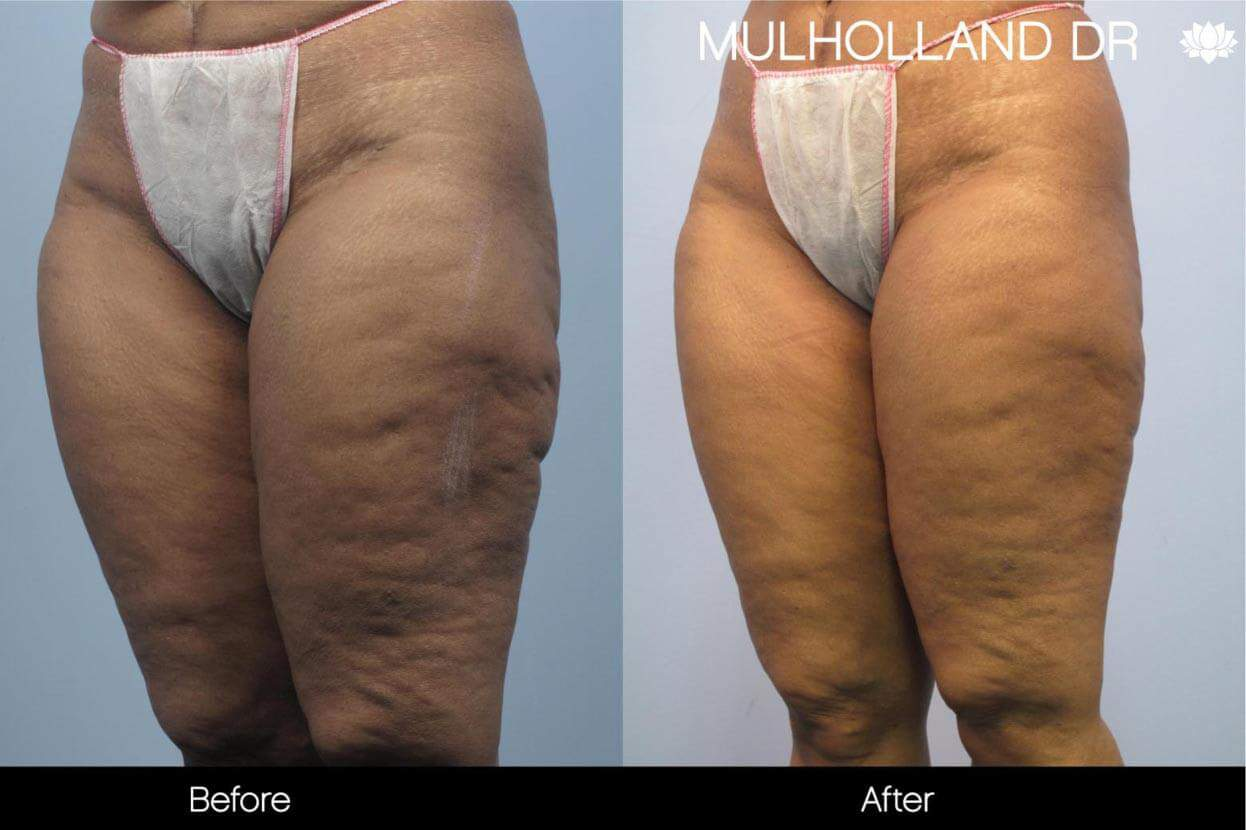 Cellulite Reduction Before and After Gallery – Photo 45