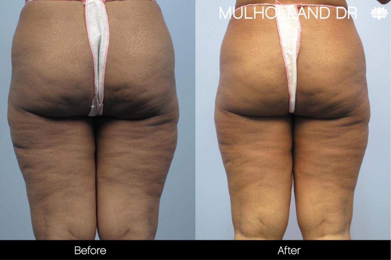 Cellulite Reduction Before and After Gallery – Photo 42