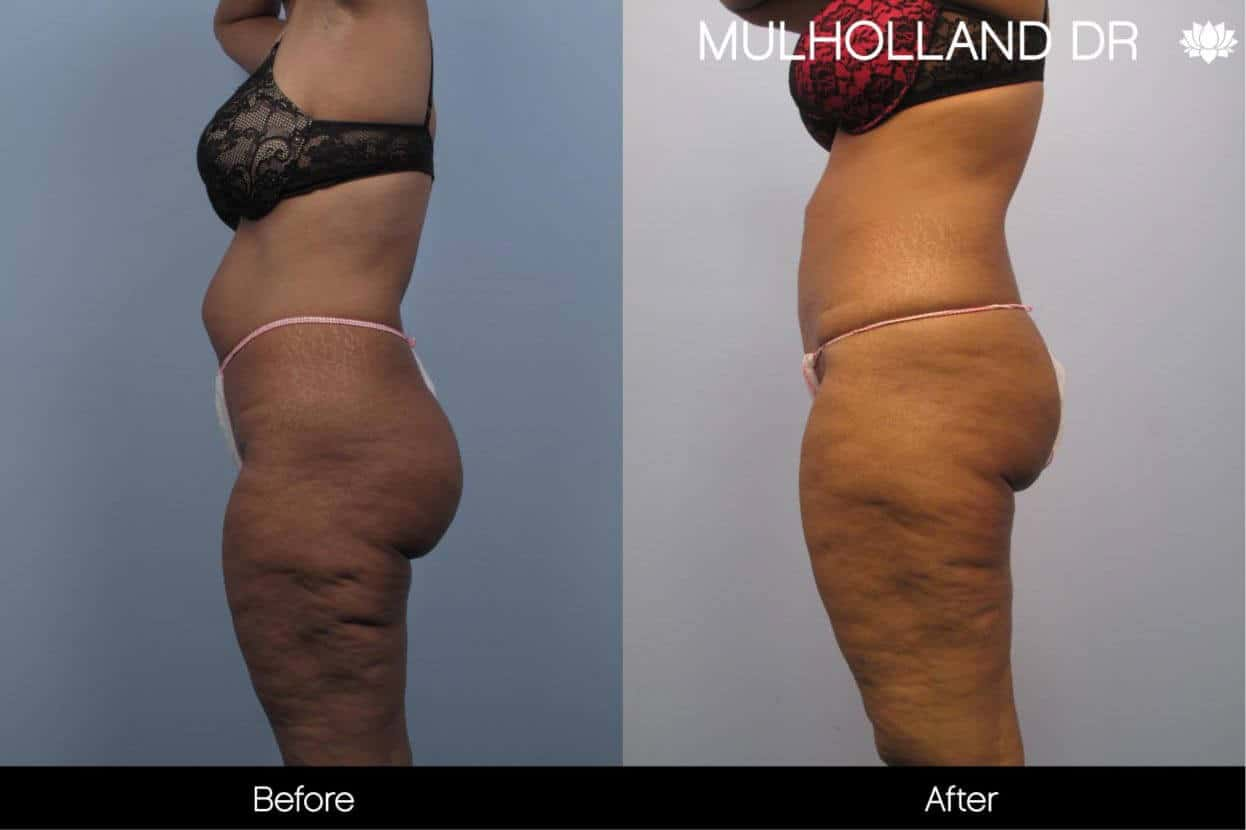 Cellulite Reduction Before and After Gallery – Photo 41