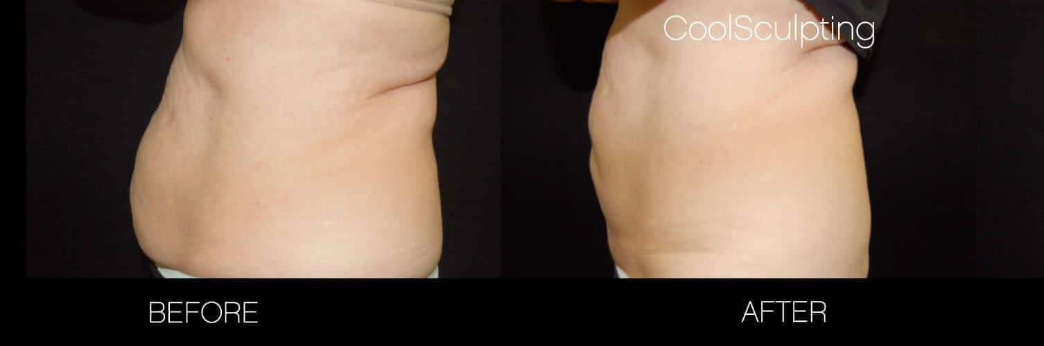 CoolSculpting - Before and After Gallery – Photo 10