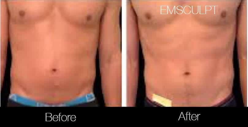 Emsculpt - Before and After Gallery – Photo 10