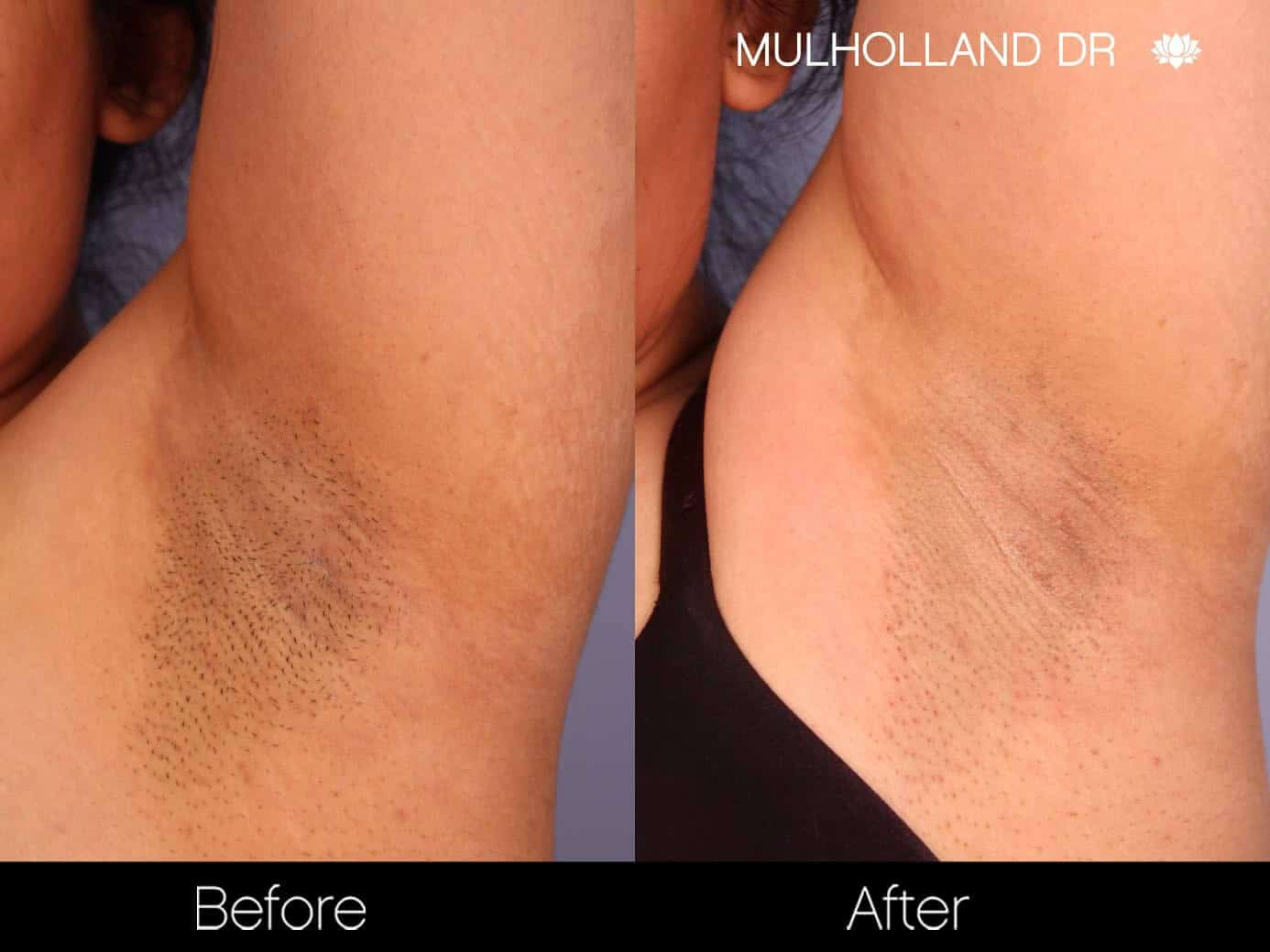 Laser Hair Removal - Patient Before and After Gallery – Photo 10
