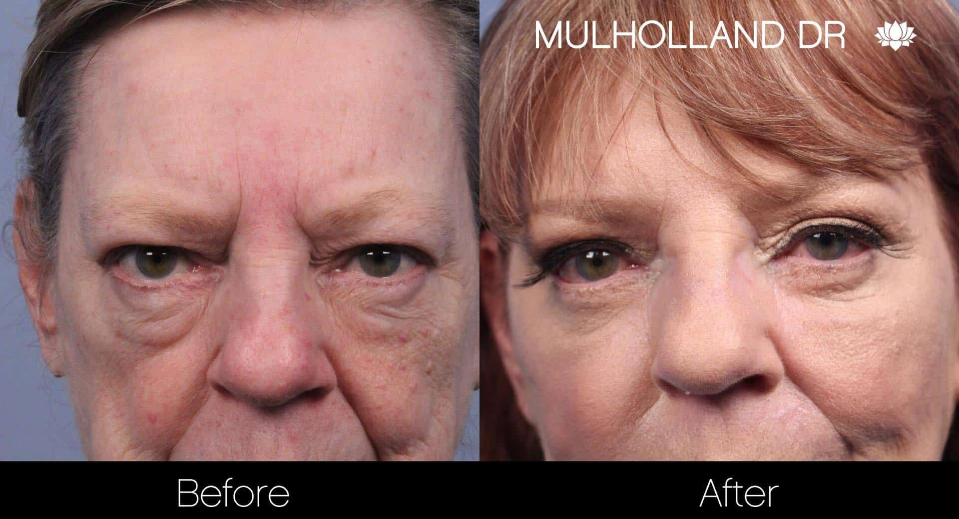 Non-Surgical Facelift - Before and After Gallery – Photo 11
