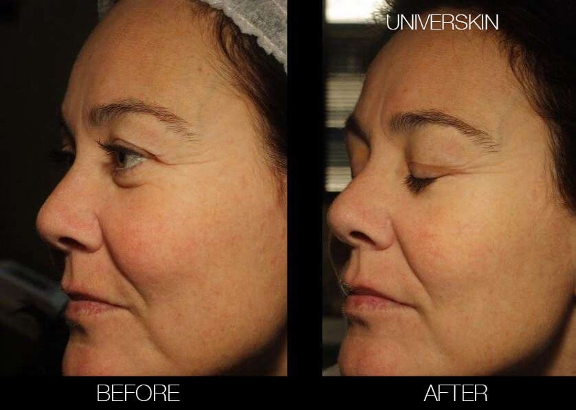 Universkin - Before and After Gallery – Photo 11