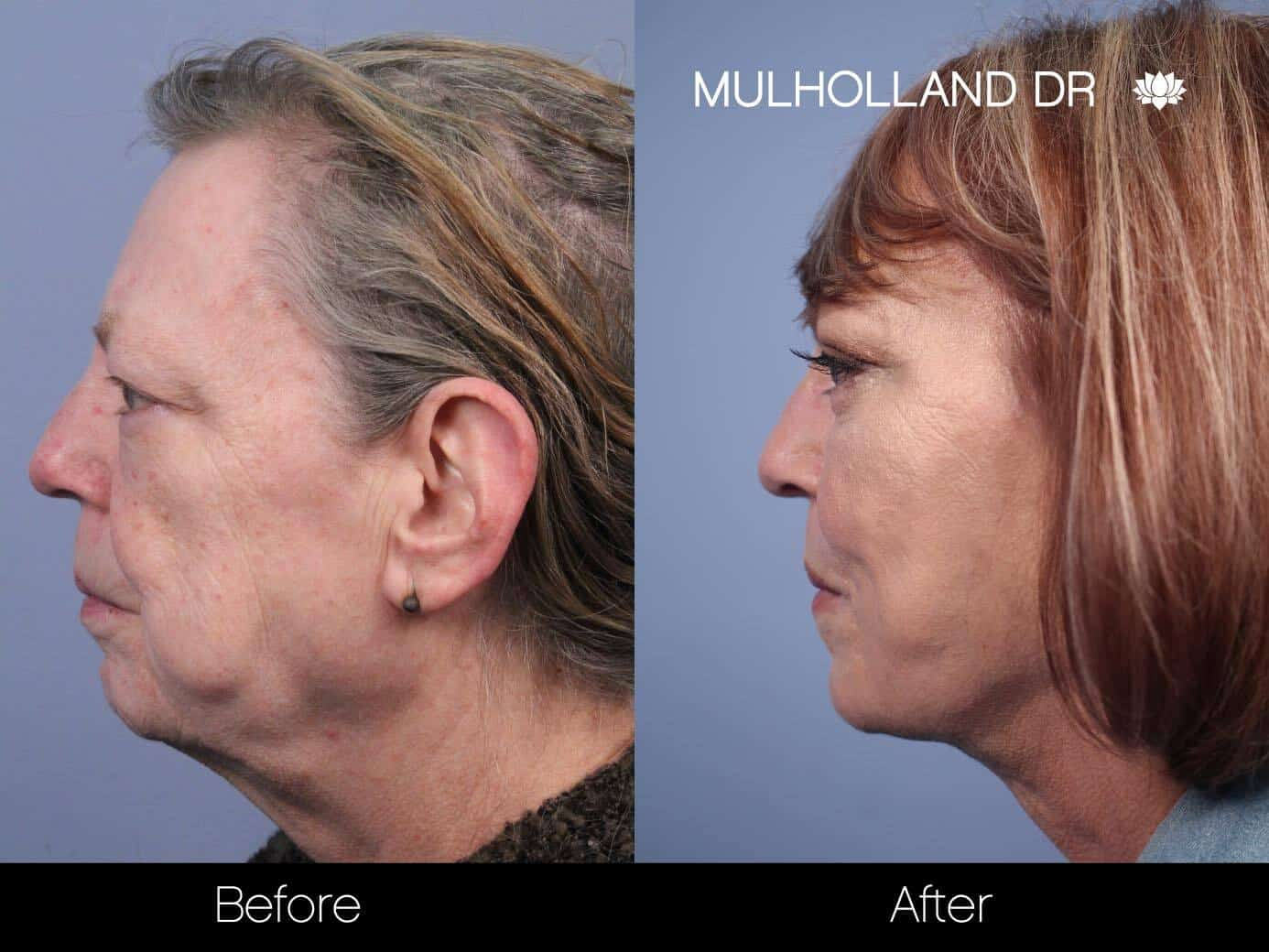 Non-Surgical Facelift - Before and After Gallery – Photo 12