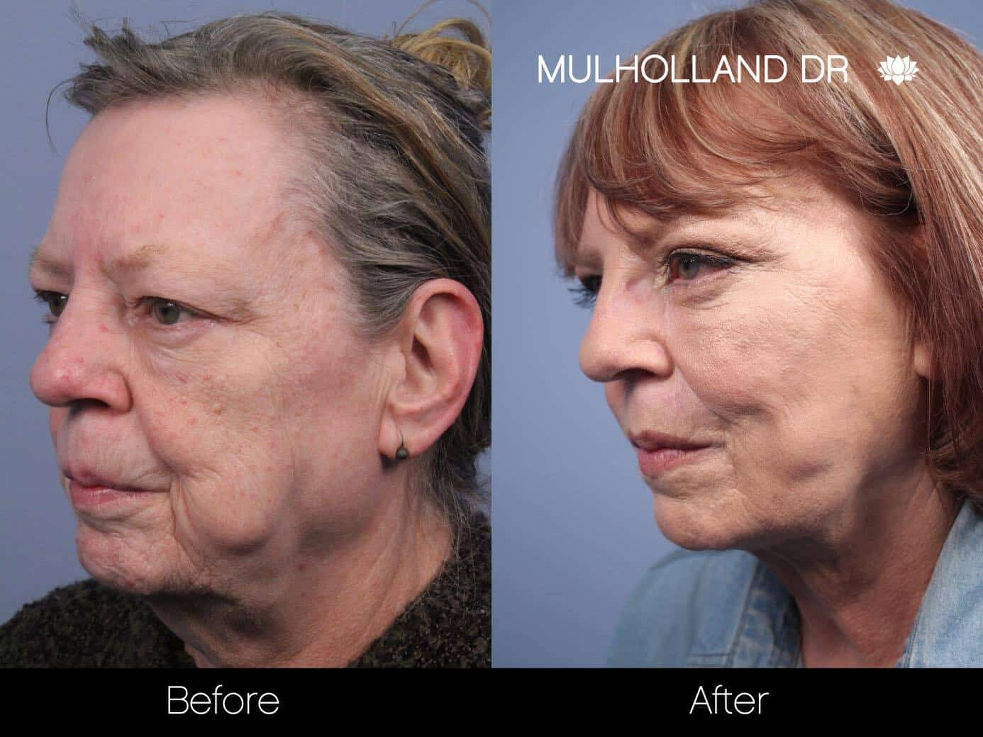Non-Surgical Facelift - Before and After Gallery – Photo 13