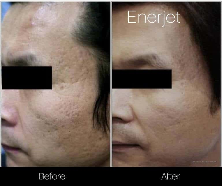 EnerJet Treatment - Before and After Gallery – Photo 1