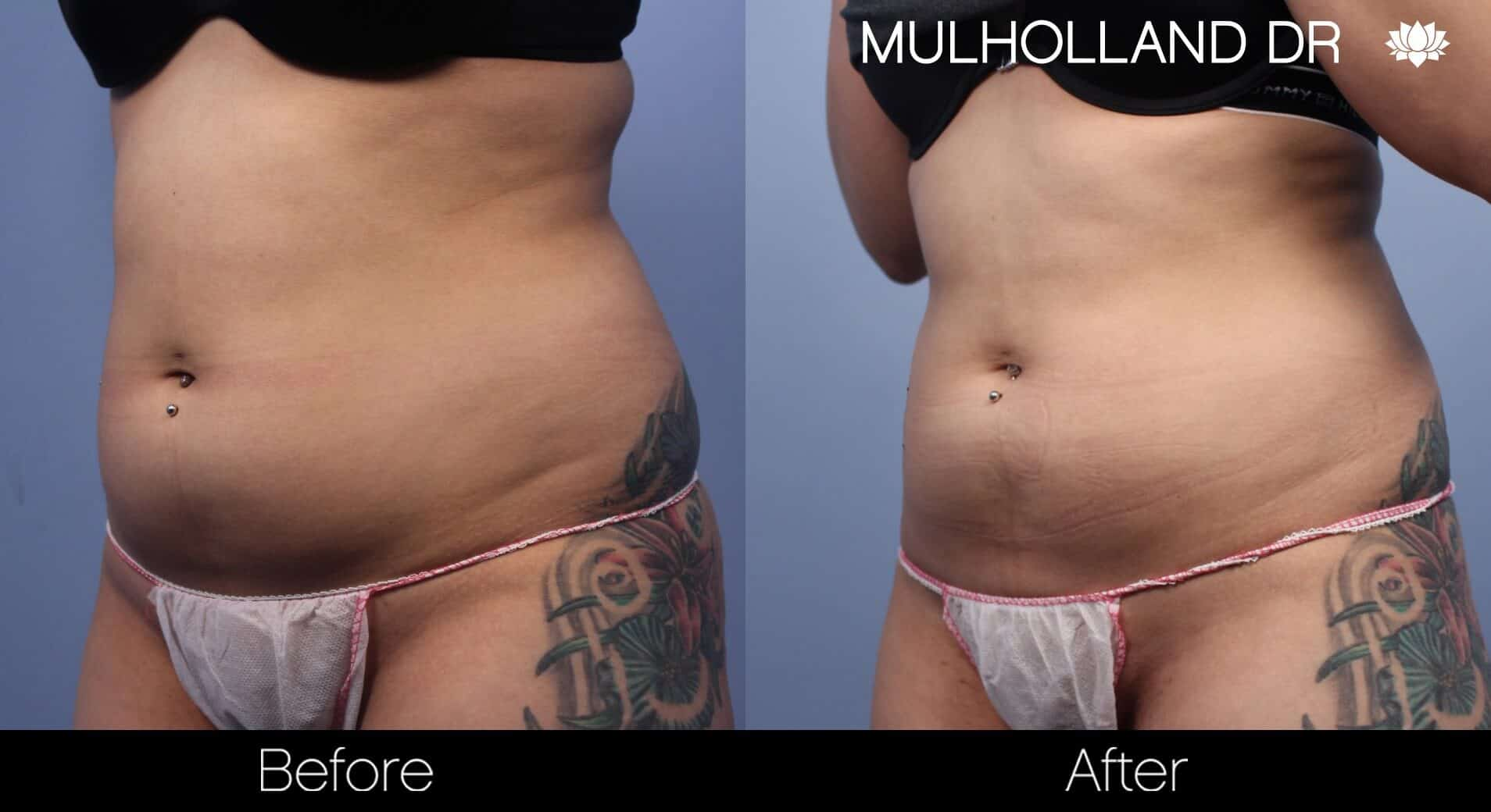 Non-Surgical Liposuction - Before and After Gallery – Photo 1