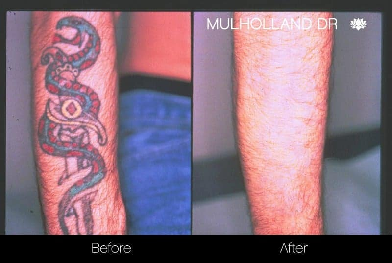 Laser Tattoo Removal - Before and After Gallery – Photo 1
