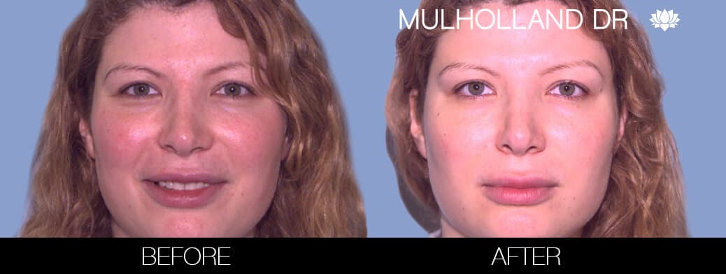 Rosacea Treatment - Patient Before and After Gallery – Photo 1