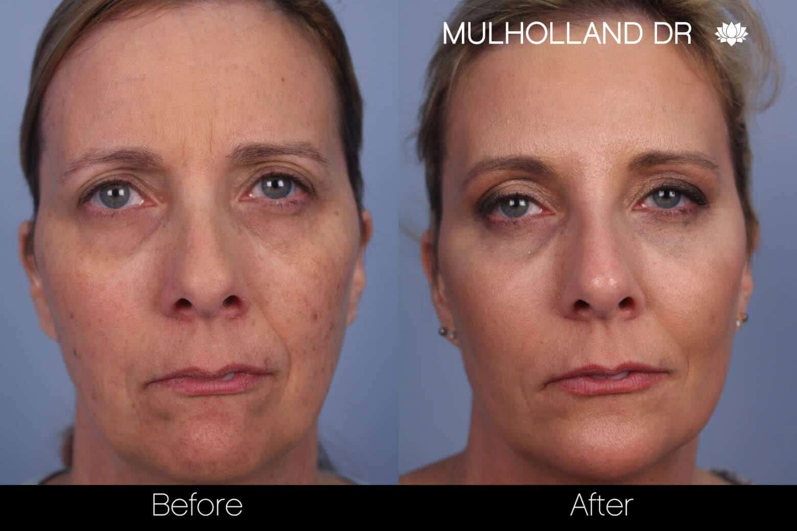 Microdermabrasion - Before and After Gallery – Photo 1