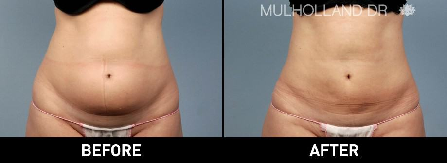 BodyTite Liposuction - Before and After Gallery – Photo 1