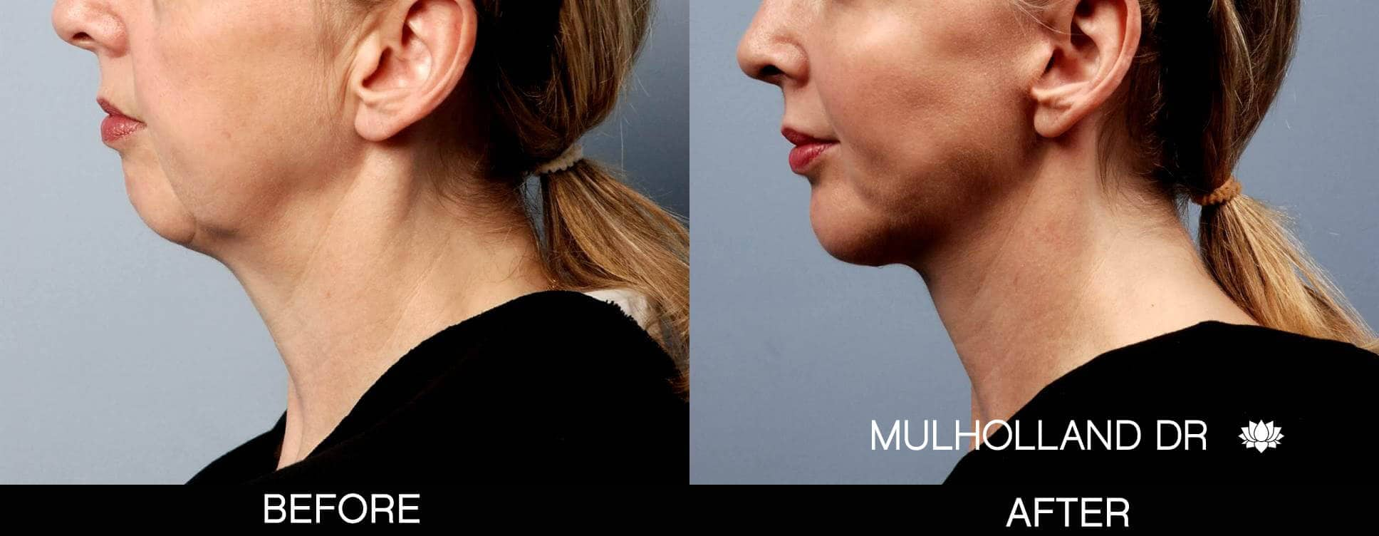 Chin Implant - Before and After Gallery – Photo 1