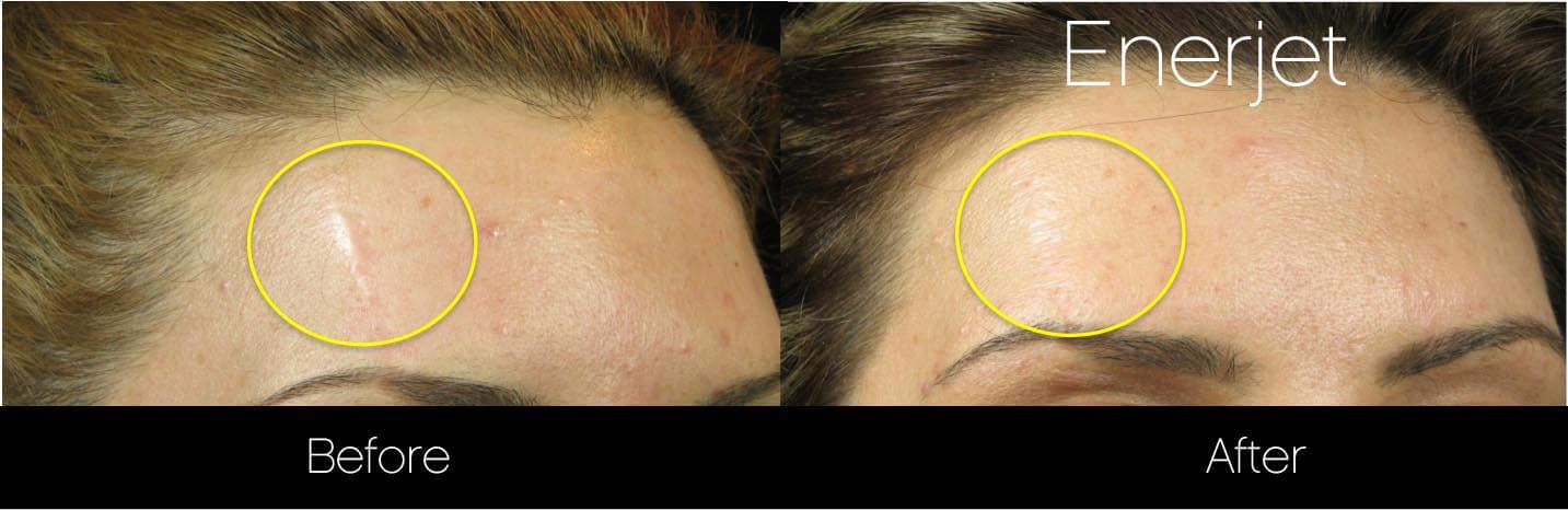 EnerJet Treatment - Before and After Gallery – Photo 2