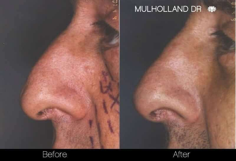 5 Minute Nose Job - Before and After Gallery – Photo 2
