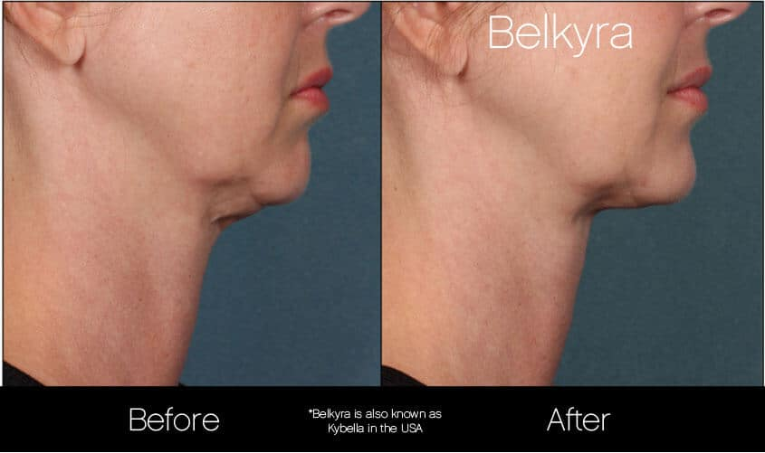 Belkyra - Before and After Gallery – Photo 5
